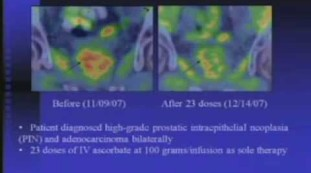 Interaction of IVC with Chemotherapeutic Agents