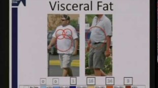 A Physician Supervised Solution for Weight Loss